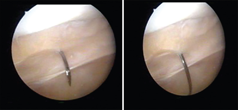 Arthroscopic proximal realignment for recurrent patellar instability ...