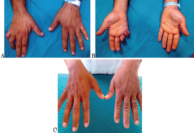 injury adults nerve Ulnar