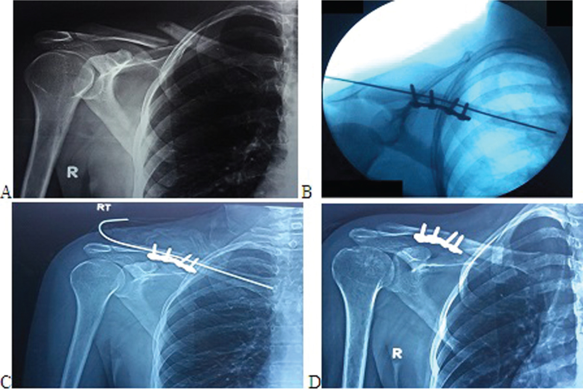 Dual fixation of midshaft clavicle fractures in adults ...