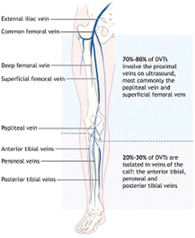 The Incidence Of Deep Vein Thrombosis After Knee Arthroscopy Zein