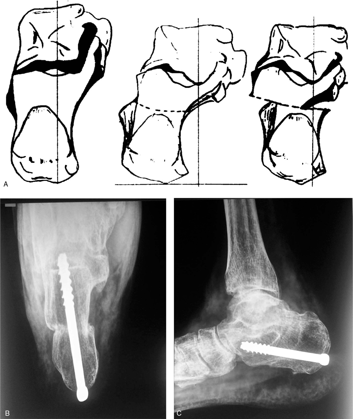 The Egyptian Orthopaedic Journal : Table of Contents